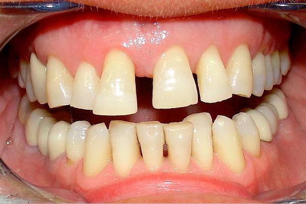 carilla dental valencia