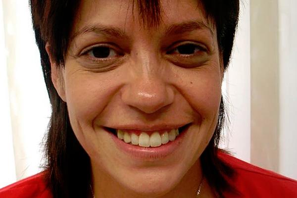 Ortodoncia profesional Valencia