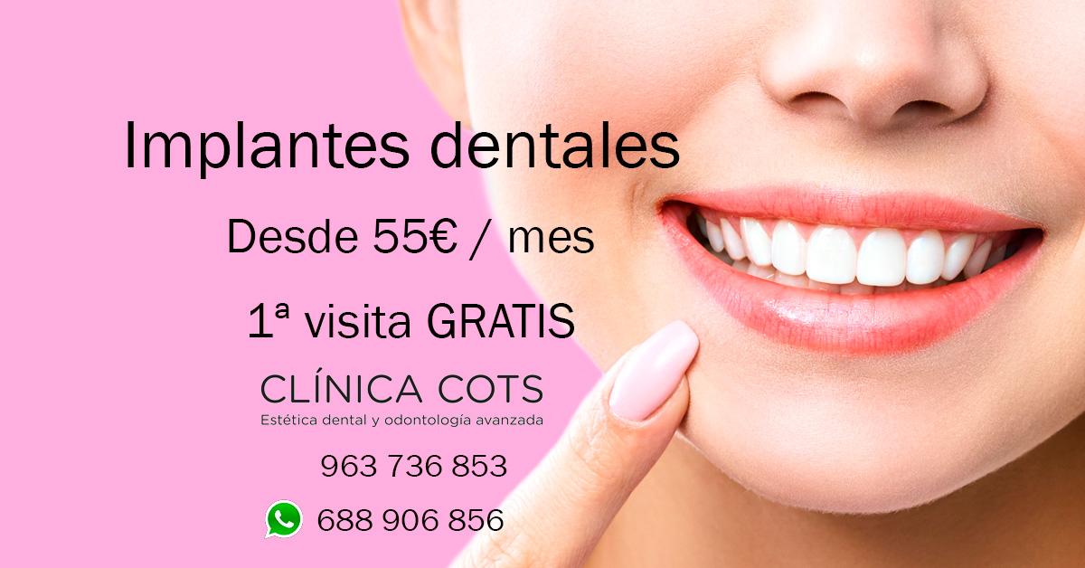 Finanzierungsfazilität für Zahnimplantate Valencia