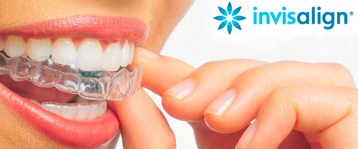 Invisaling ortodoncia invisible en Valencia clinica dental Cots