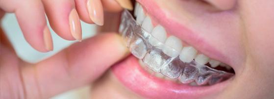 aligners ortodoncia invisible en Valencia