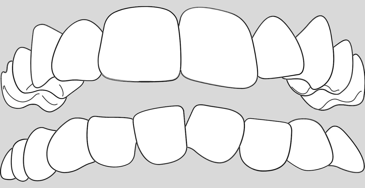 ortodoncia invisible para casos dientes apiñados en Valencia