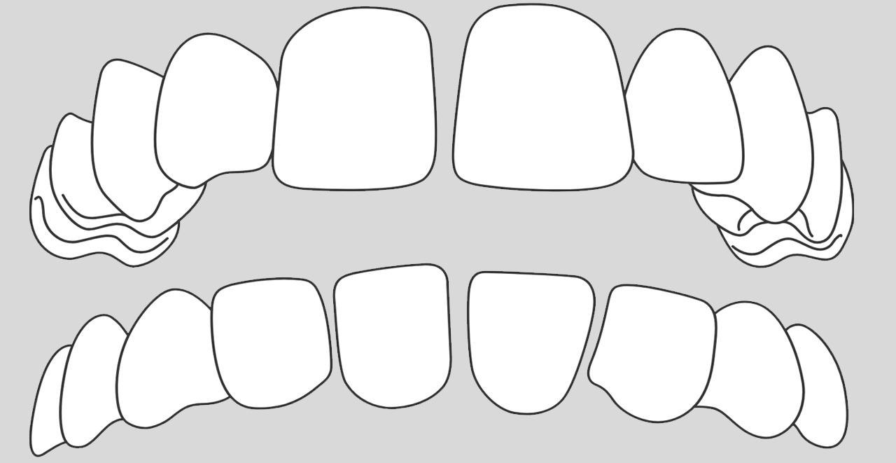 ortodoncia invisible para casos dientes separados en Valencia