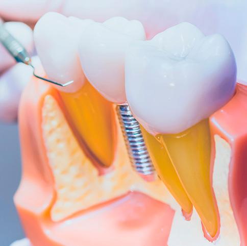 garantia-implantes-dentales-valencia-ruzafa-clinica-cots-