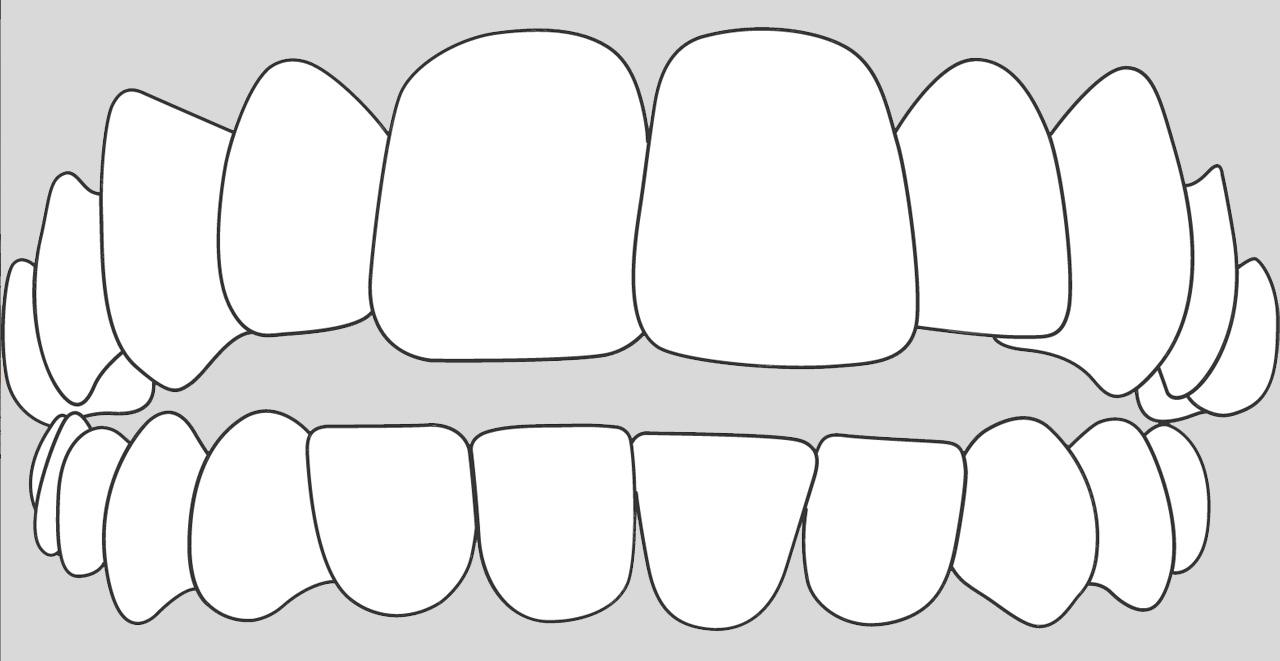 ortodoncia invisible para casos mordida abierta en Valencia