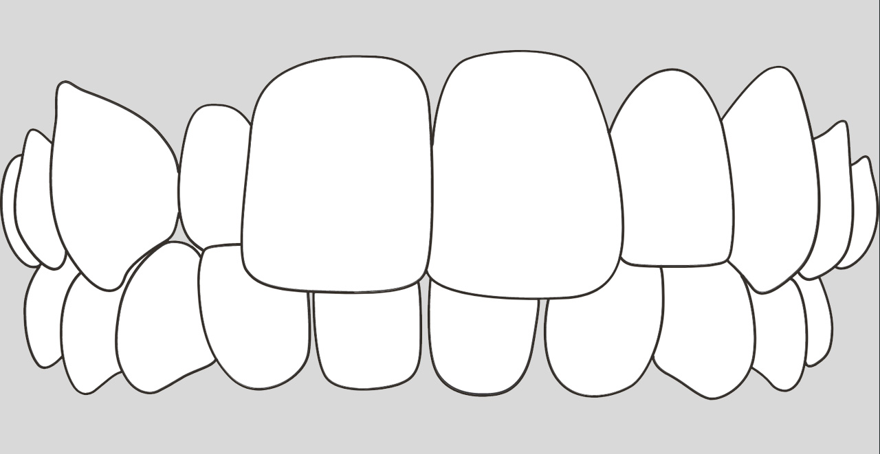ortodoncia invisible para casos mordida cruzada en Valencia