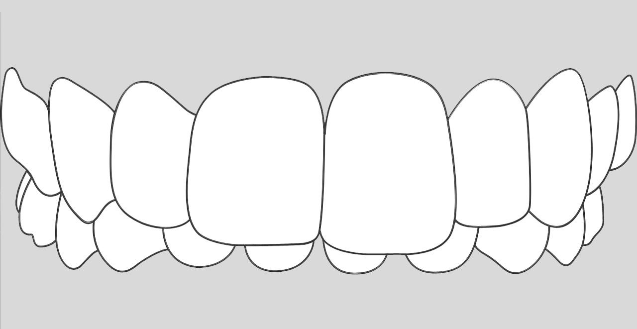 ortodoncia invisible para casos mordida profunda en Valencia