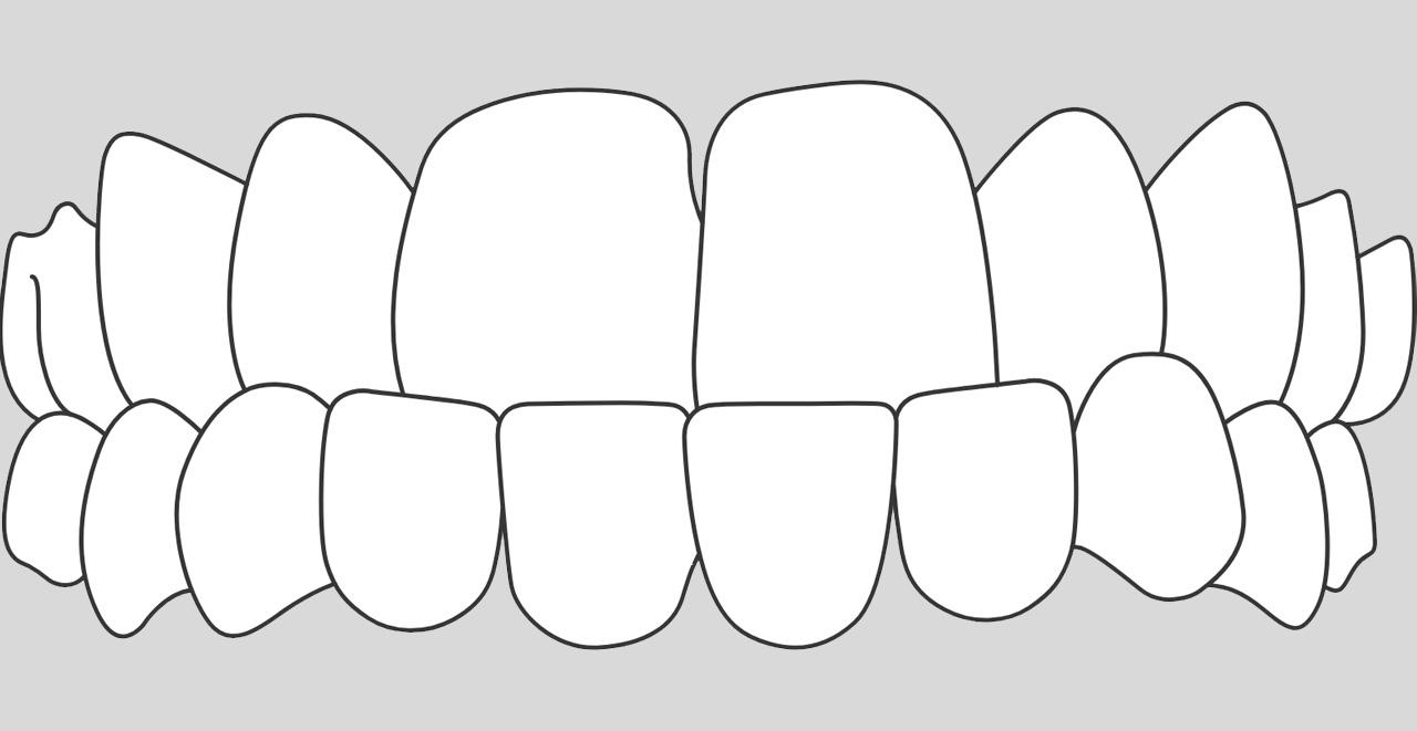 ortodoncia invisible para casos deprogmatismo en Valencia