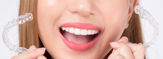 resultados ortodoncia invisible en Valencia